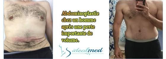 abdominoplastie tunisie pour Homme